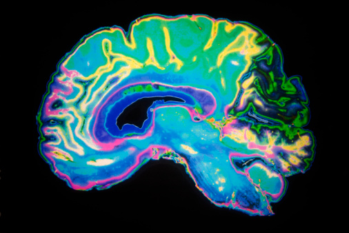 Colourful cross section of the brain