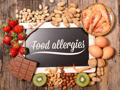 A board surrounded by food with the words 'food allergies' written on it