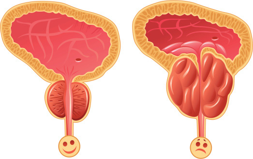 A cross section of two prostates, one healthy and one swollen