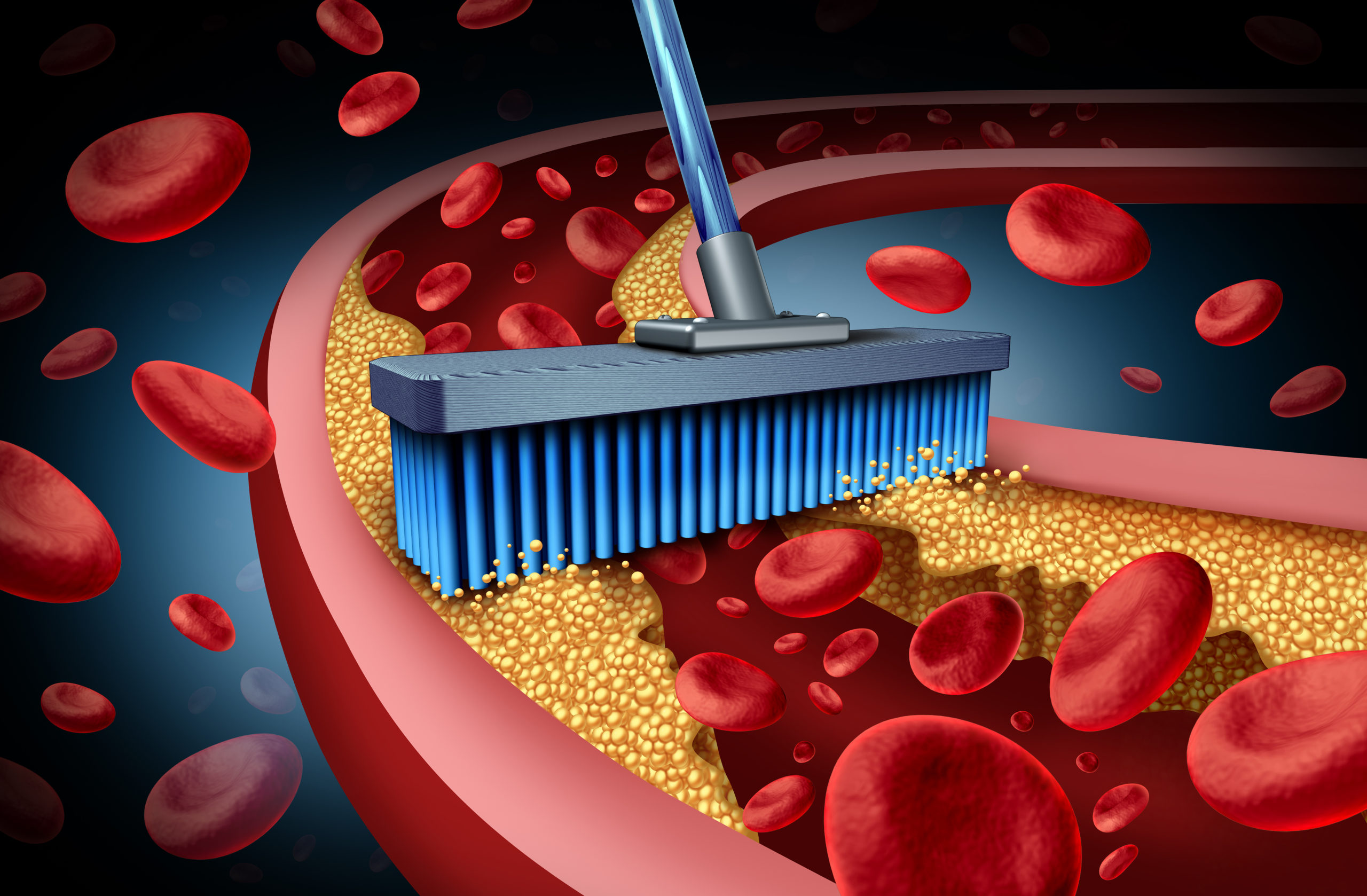 Animation of a brush removing a yellow substance from a blood vessel