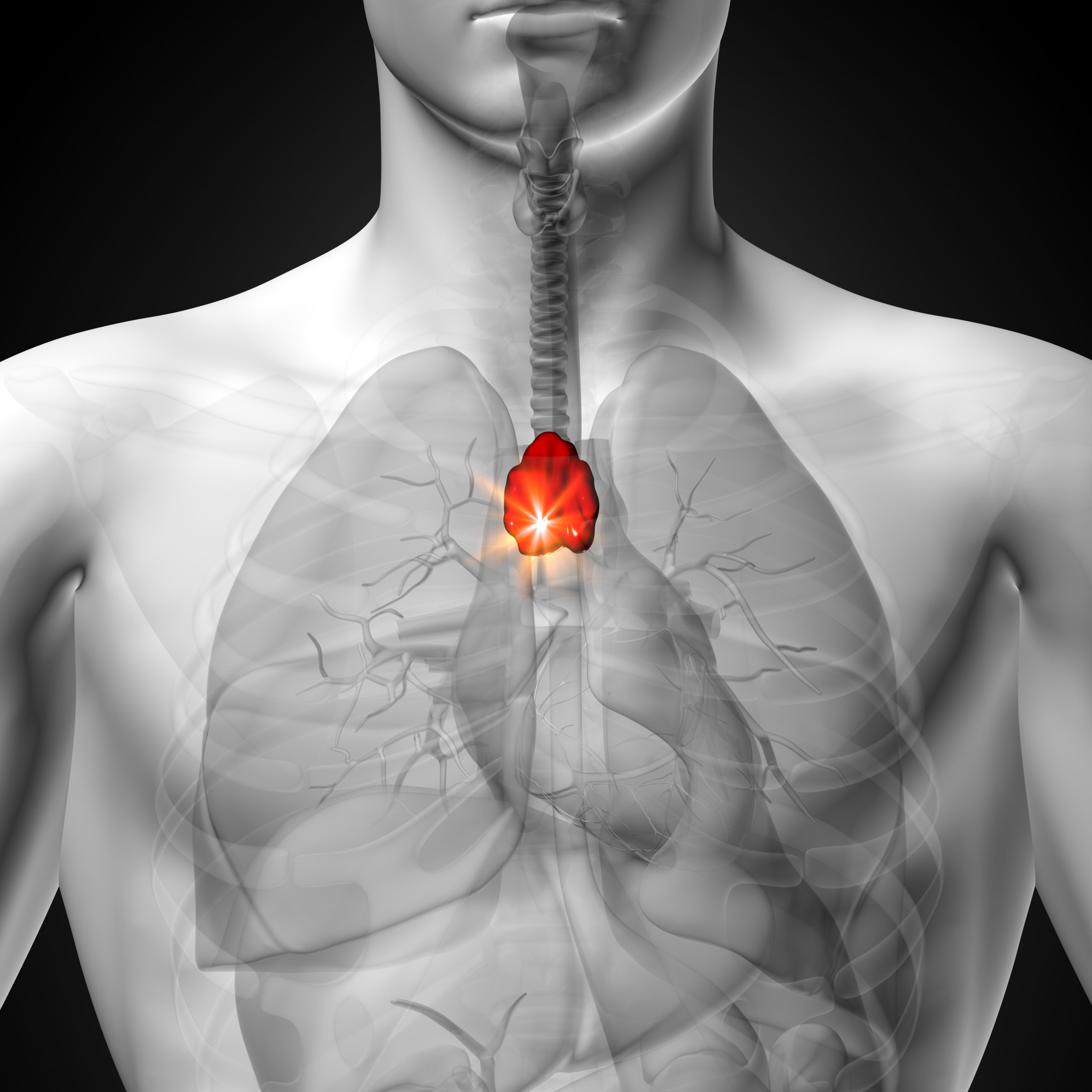 Image of the inside of a human with a highlighted red lump above the heart