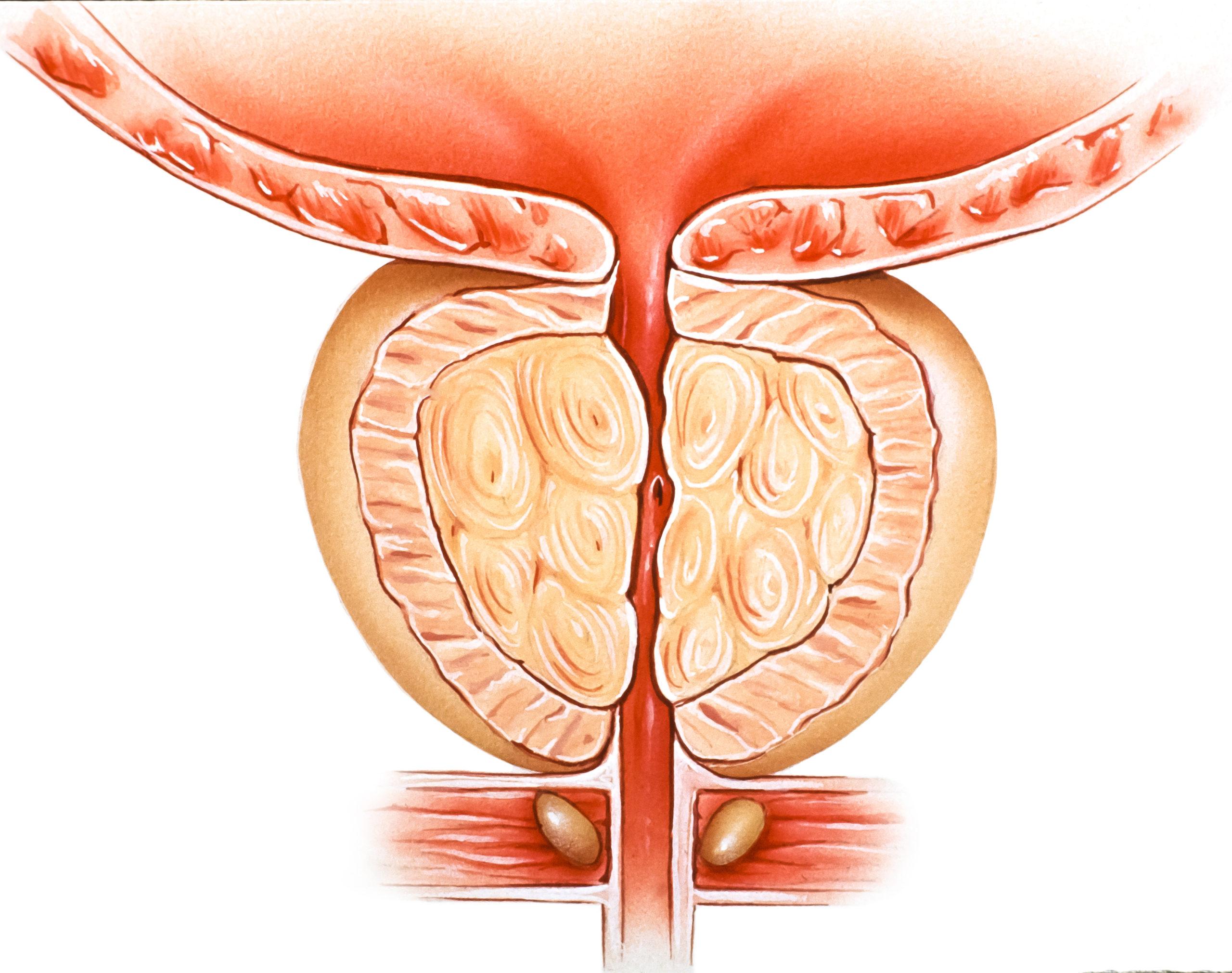 A diagram of Benign Prostatic Hyperplasia
