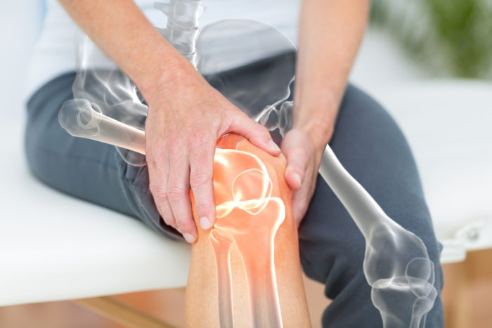 Person with skeleton overlay showing knee problems