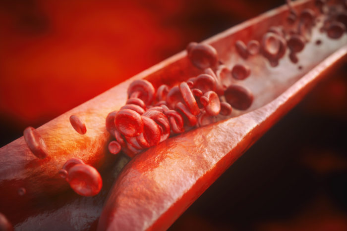 A 3D cross section of a vein and the red blood cells getting caught in a restricted area
